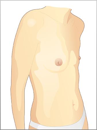 Lattazione dopo operazione del petto