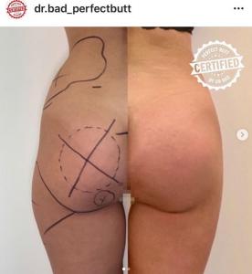 chirurgia-estetica-interventi-combinati